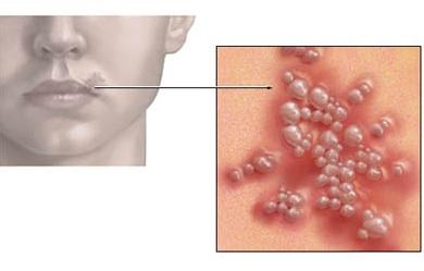 противогерпетические препараты нового поколения