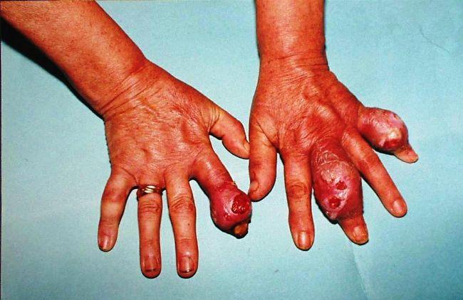 лечение организма от паразитов таблетками