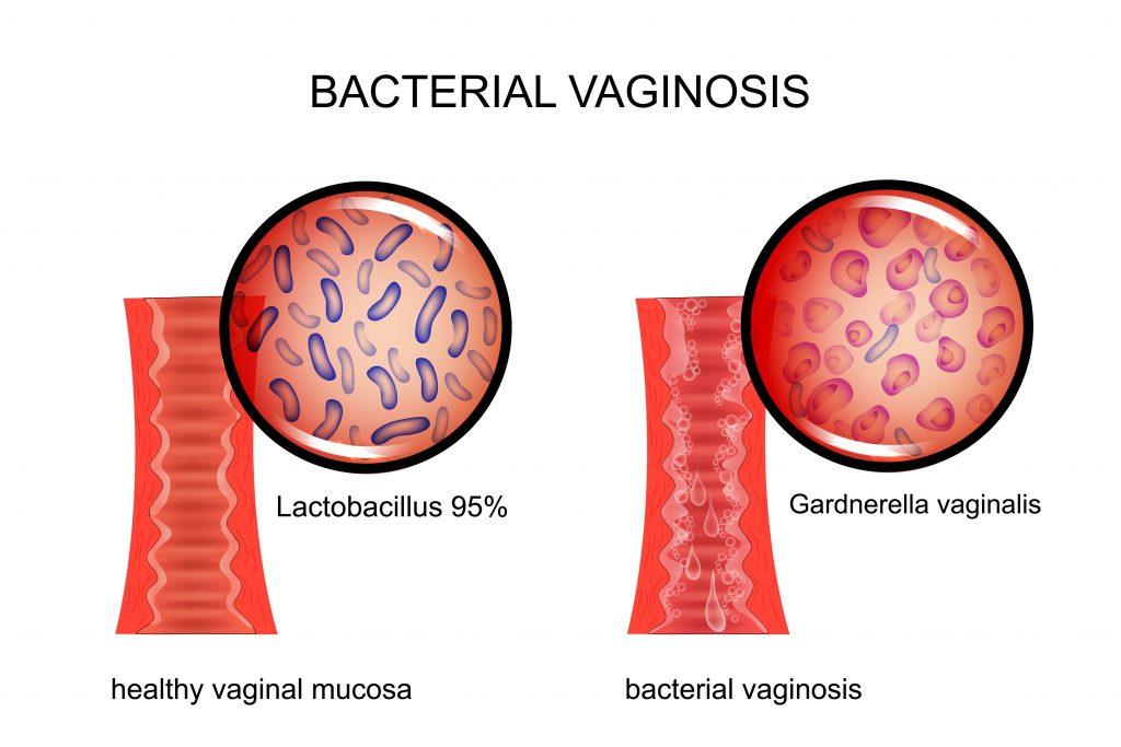 Human vaginal flora