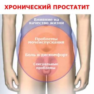 Алоэ как лечение простатита - Инсульт – Лечение