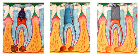 Виды зубной боли, причины ее появления и первая помощь