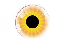 Отслойка сетчатки глаза: причины, симптомы, лечение