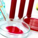 Амилоидоз – симптомы, лечение