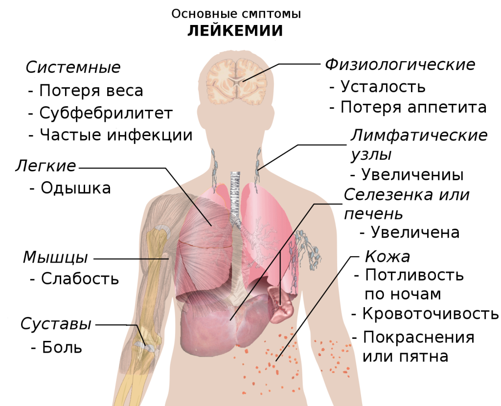 Symptoms_of_leukemia_ru