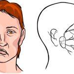 Что такое микроинсульт и его симптомы