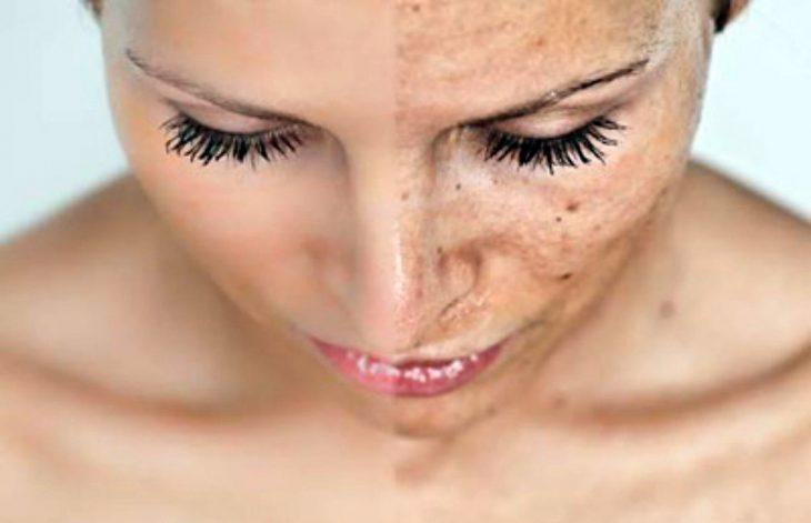 Как убрать пигментные пятна на носу