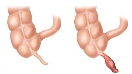 Как вылечить эндометриоз без гормонов-личный опыт
