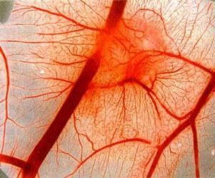 картинки геморрагический васкулит