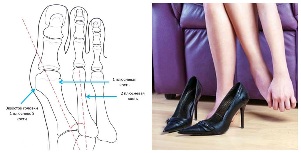 Как вылечить косточки (шишки) на ногах - отзывы форум обсуждение