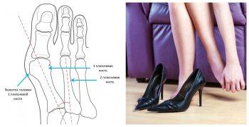 Как лечить косточку на ногах?