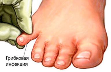 Народные средства для лечения грибка стоп