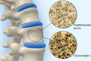 Гормонально-активные опухоли надпочечников: кортикостерома, андростерома и кортикоэстромаГормонально-активные опухоли надпочечников: кортикостерома, андростерома и кортикоэстрома