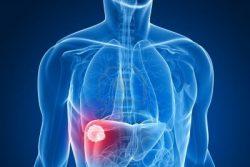 Стеатогепатит: симптомы, лечение и диета