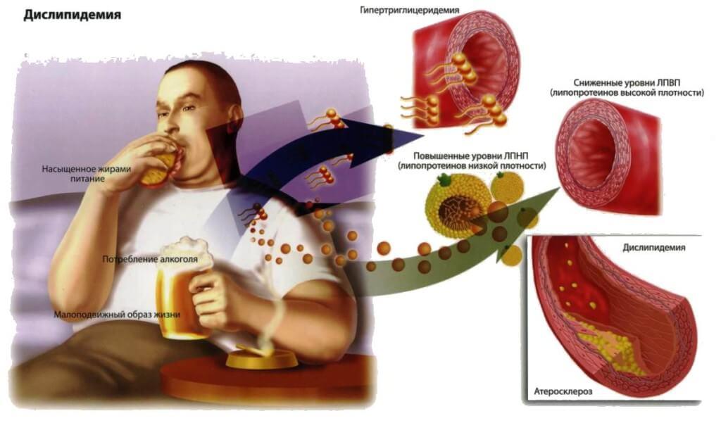 повышение холестерина в крови причины