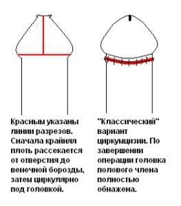 кардиган лечение фимоза ребенка 2 лет комаровский Анатолий Маркович