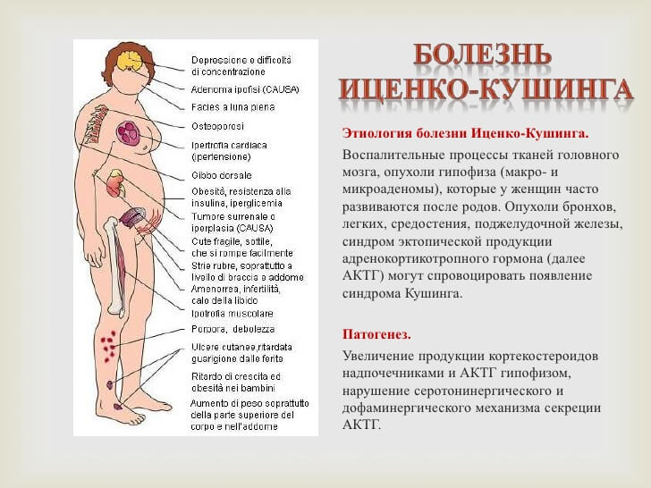 Синдром Кушинга