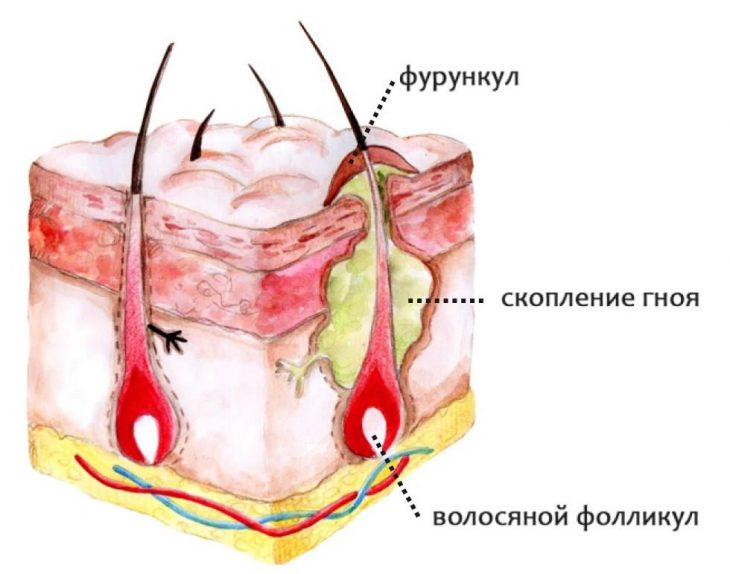 Фурункулы: причины и лечение