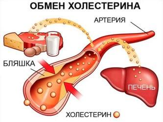 Гиперлипидемия: симптомы и лечение