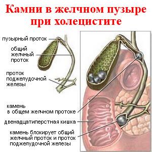 Желчный пузырь симптомы заболевания МедТех Дом