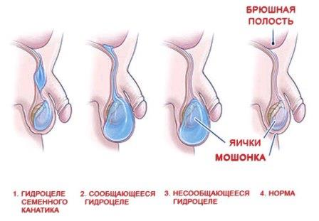 гидроцеле у мужчин