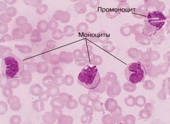 мегалобластная анемия