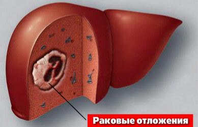 Гепатит с нагрузка вирусная инфекция