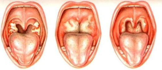 дифтерия у детей симптомы фото