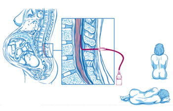 Местная анестезия: виды, методы, препараты