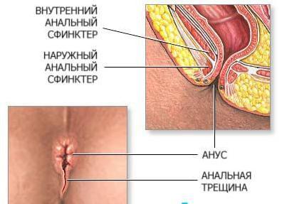 Анальная трещина у ребенка 1 год лечение