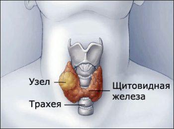 Увеличение щитовидной железы: симптомы, причины и последствия
