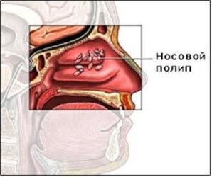Полипы в носу: причины, симптомы и лечение