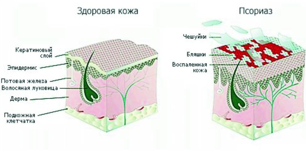 схема лечения от паразитов в организме человека