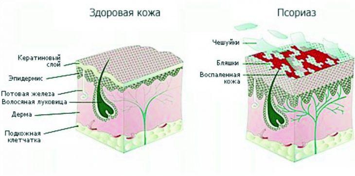 Лечение псориаза дома 15 фотография