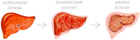 Реакция кожи на болезнь печени
