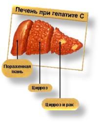 Токсический гепатит при лечений туберкулеза