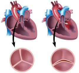 Аортальные пороки: причины, виды, симптомы и лечение