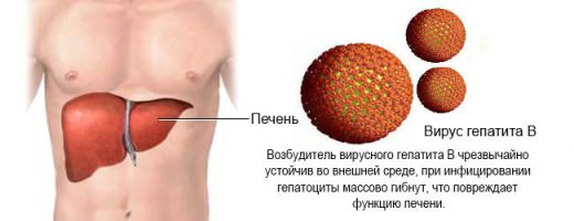 Санаторий при болезни печени