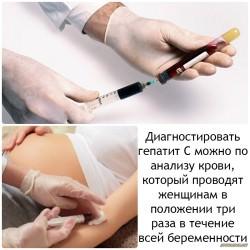 Симптомы вирусного гепатита