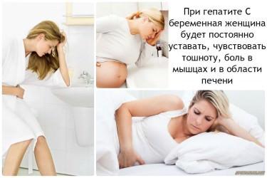 Вирусный гепатит у детей: симптомы, лечение