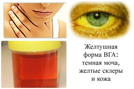 Высокая температура от прививки гепатита