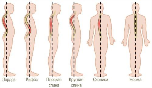 Лордоз: причины, симптомы и лечение