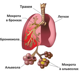Хадыженск минеральный санаторий лечение цены