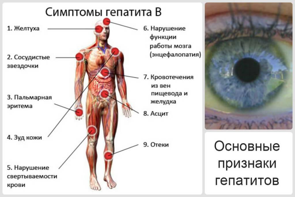 Признаки гепатита цирроза печени