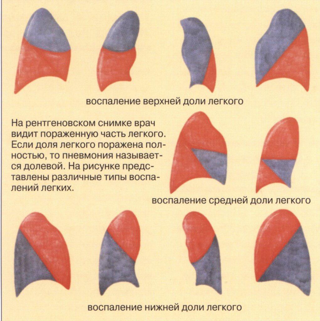 вильпрафен схема лечения пневмонии