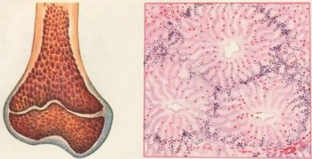 В12-дефицитная анемия