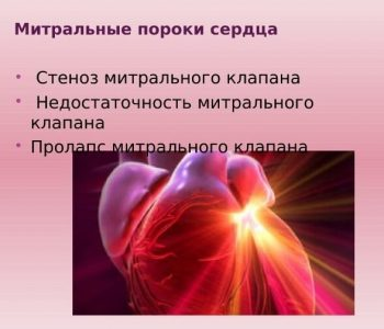 Митральные пороки сердца: диагностика и лечение