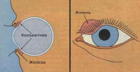 Зловонный запах из носа как лечить