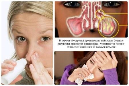 Самое эффективное средство при лечении кандидоза