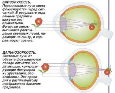 Восстановление зрения лазером нижний новгород