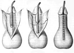 Половые органы гемофродитов